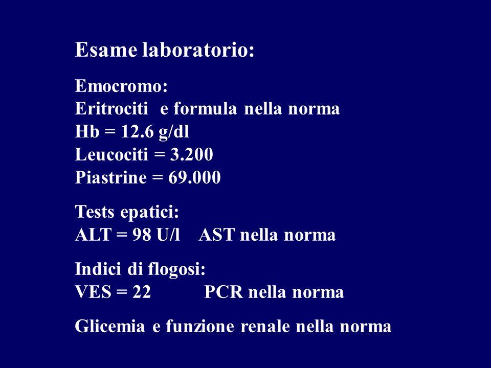 Esame laboratorio: Emocromo: Eritrociti e formula nella norma Hb = 12.6 g/dl Leucociti = 3.200 Piastrine = 69.000 Tests epatici: ALT = 98 U/l AST nell