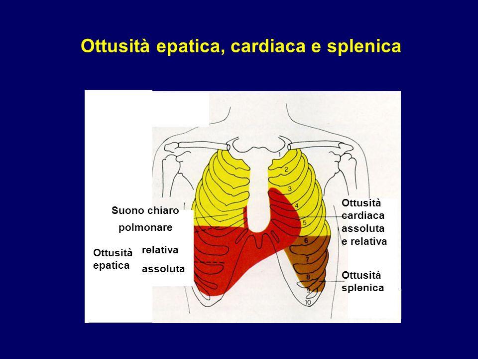 Ottusità epatica, cardiaca e splenica Timpanismo addominale Relativa Assoluta Ottusità splenica Ottusità cardiaca assoluta e relativa Suono chiaro pol