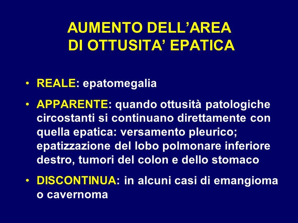 AUMENTO DELLAREA DI OTTUSITA EPATICA REALE: epatomegalia APPARENTE: quando ottusità patologiche circostanti si continuano direttamente con quella epat