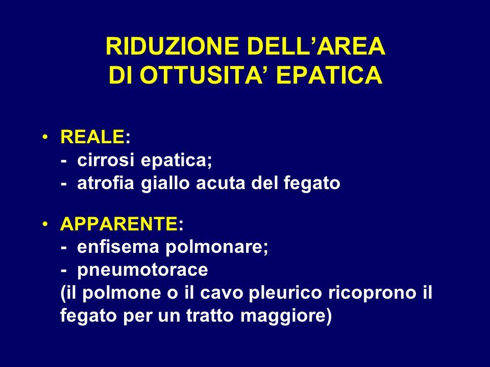 RIDUZIONE DELLAREA DI OTTUSITA EPATICA REALE: - cirrosi epatica; - atrofia giallo acuta del fegato APPARENTE: - enfisema polmonare; - pneumotorace (il