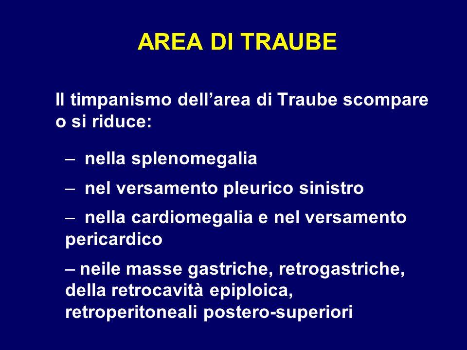 Il timpanismo dellarea di Traube scompare o si riduce: – nella splenomegalia – nel versamento pleurico sinistro – nella cardiomegalia e nel versamento