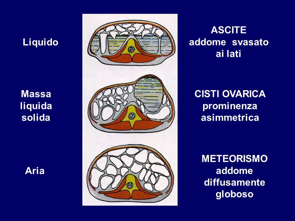 Liquido Massa liquida solida Aria ASCITE addome svasato ai lati CISTI OVARICA prominenza asimmetrica METEORISMO addome diffusamente globoso