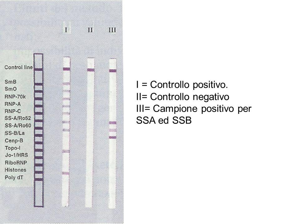 I = Controllo positivo. II= Controllo negativo III= Campione positivo per SSA ed SSB