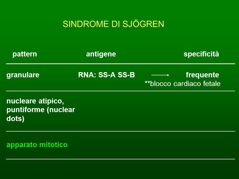 SINDROME DI SJÖGREN pattern antigene specificità granulare RNA: SS-A SS-B frequente **blocco cardiaco fetale nucleare atipico, puntiforme (nuclear dot