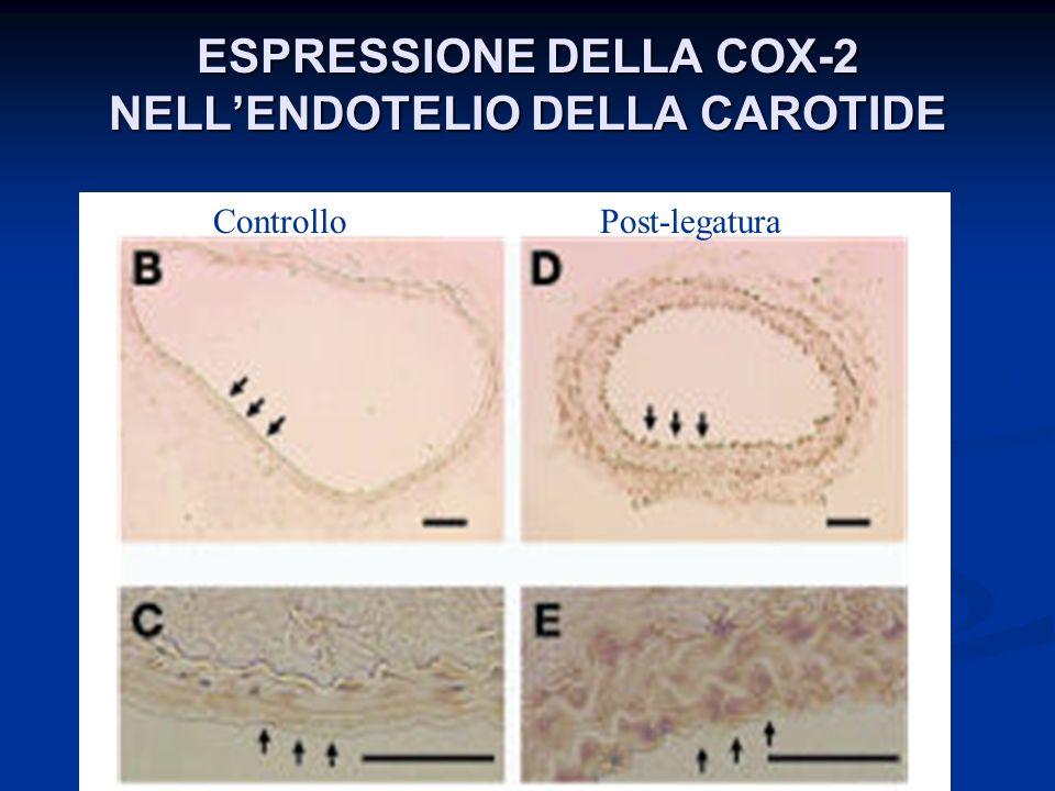 ESPRESSIONE DELLA COX-2 NELLENDOTELIO DELLA CAROTIDE ControlloPost-legatura