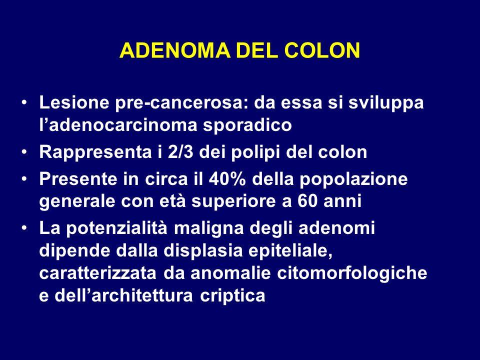 ADENOMA DEL COLON Lesione pre-cancerosa: da essa si sviluppa ladenocarcinoma sporadico Rappresenta i 2/3 dei polipi del colon Presente in circa il 40%