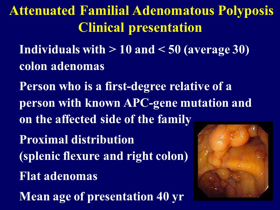 Attenuated Familial Adenomatous Polyposis Clinical presentation Individuals with > 10 and < 50 (average 30) colon adenomas Person who is a first-degre