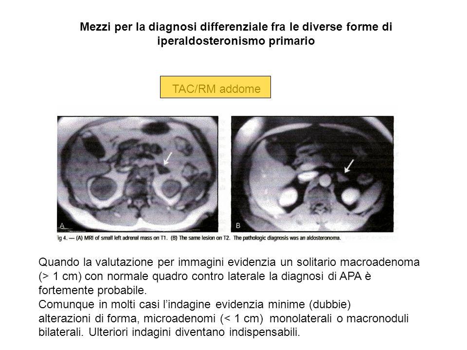 TAC/RM addome Quando la valutazione per immagini evidenzia un solitario macroadenoma (> 1 cm) con normale quadro contro laterale la diagnosi di APA è