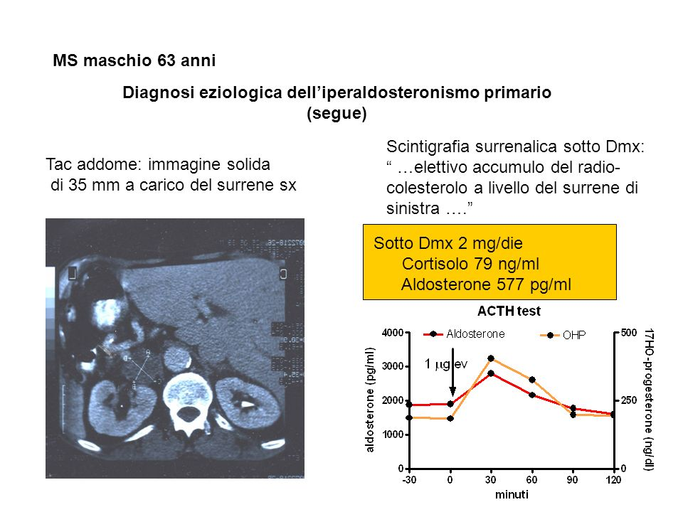Diagnosi eziologica delliperaldosteronismo primario (segue) MS maschio 63 anni Tac addome: immagine solida di 35 mm a carico del surrene sx Scintigraf
