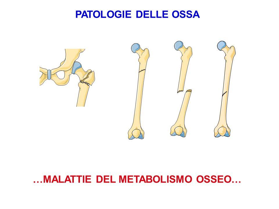 …MALATTIE DEL METABOLISMO OSSEO… PATOLOGIE DELLE OSSA