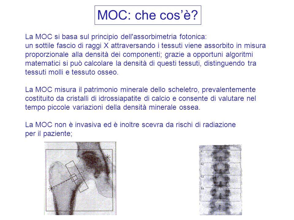 La MOC si basa sul principio dell'assorbimetria fotonica: un sottile fascio di raggi X attraversando i tessuti viene assorbito in misura proporzionale
