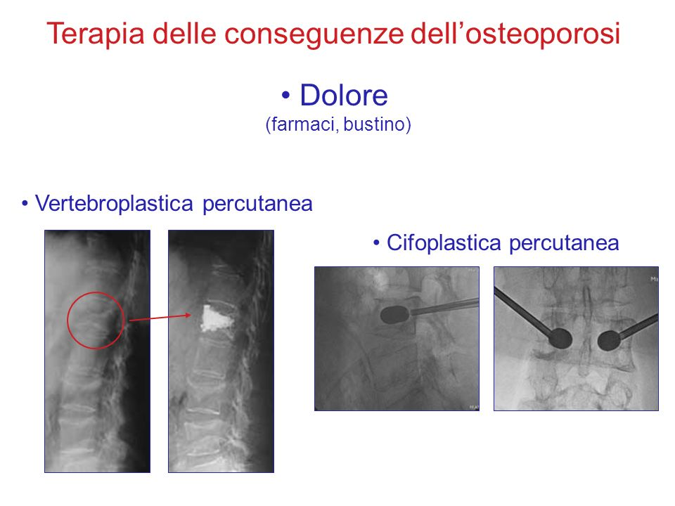 Dolore (farmaci, bustino) Vertebroplastica percutanea Cifoplastica percutanea