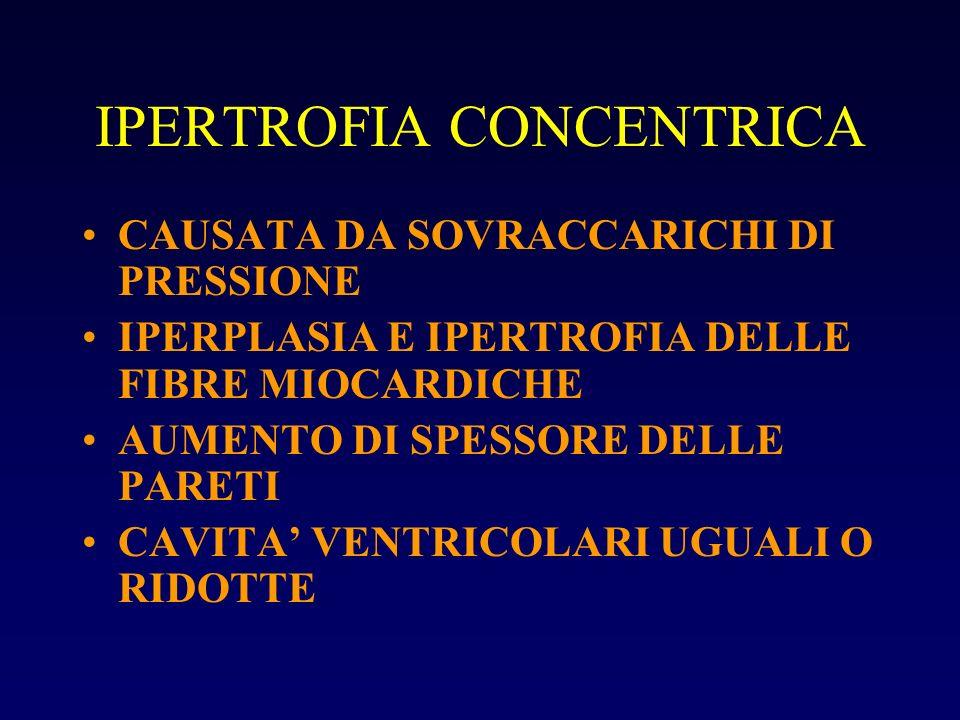 IPERTROFIA CONCENTRICA CAUSATA DA SOVRACCARICHI DI PRESSIONE IPERPLASIA E IPERTROFIA DELLE FIBRE MIOCARDICHE AUMENTO DI SPESSORE DELLE PARETI CAVITA V