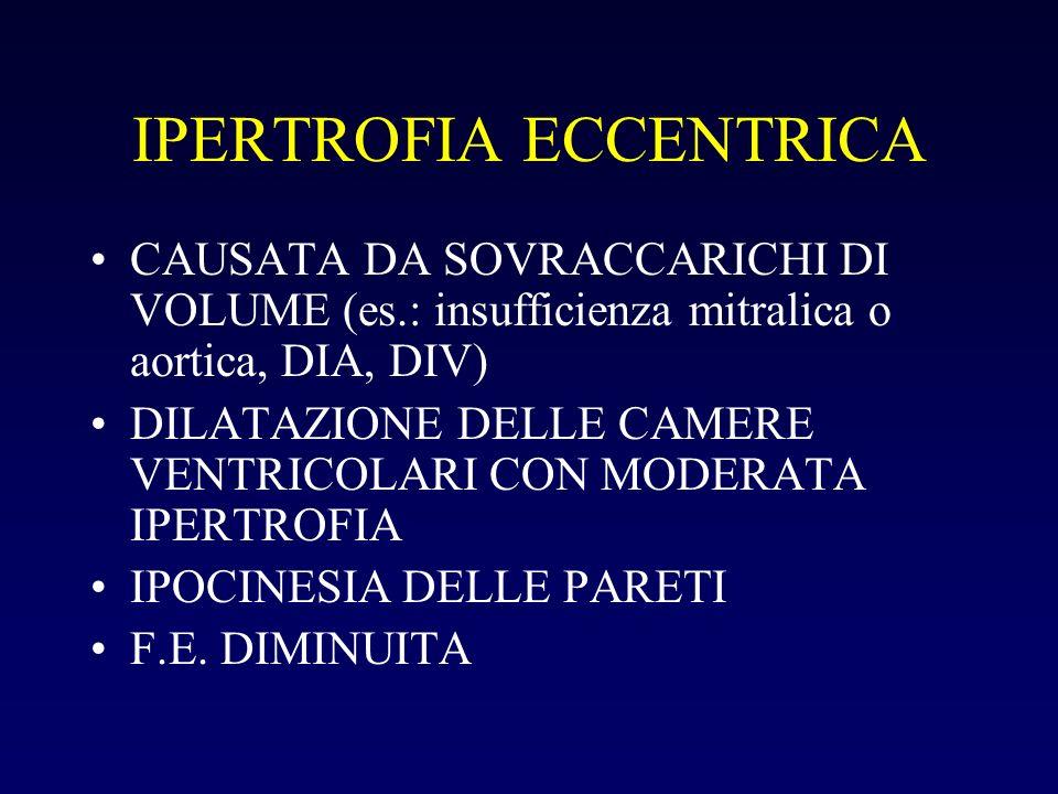 IPERTROFIA ECCENTRICA CAUSATA DA SOVRACCARICHI DI VOLUME (es.: insufficienza mitralica o aortica, DIA, DIV) DILATAZIONE DELLE CAMERE VENTRICOLARI CON