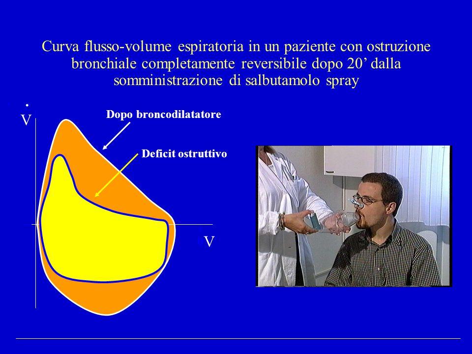 Curva flusso-volume espiratoria in un paziente con ostruzione bronchiale completamente reversibile dopo 20 dalla somministrazione di salbutamolo spray