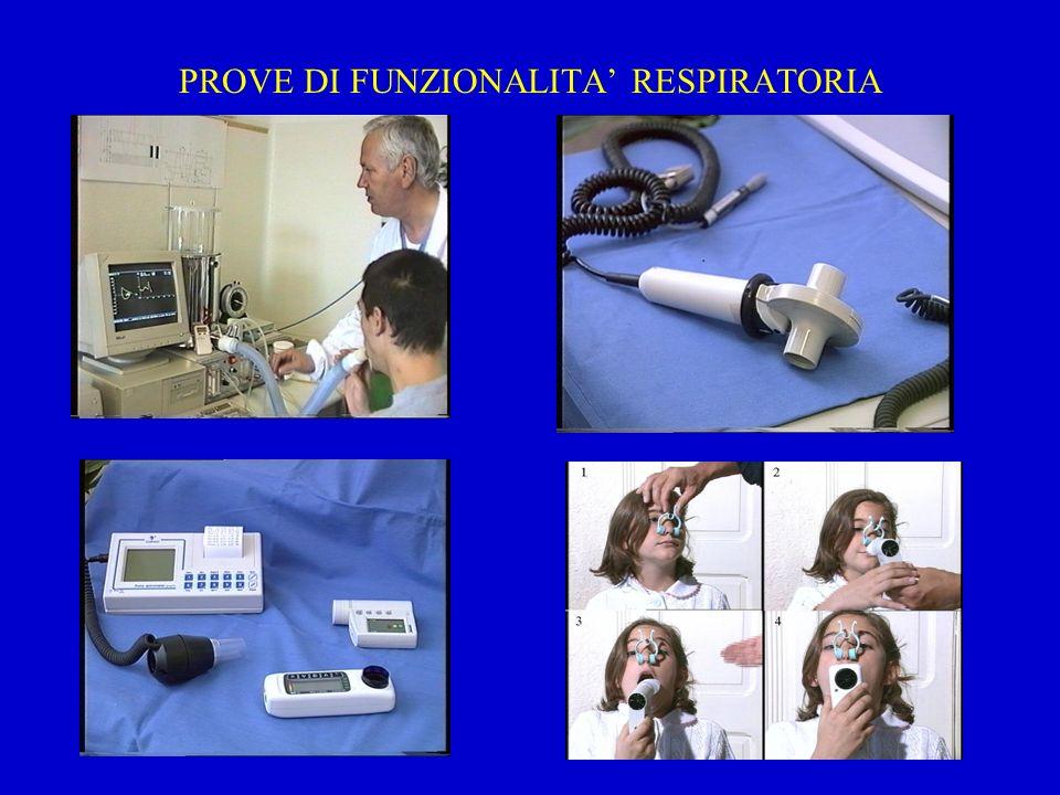 Limitazione ventilatoria all esercizio NormaleOstruzione