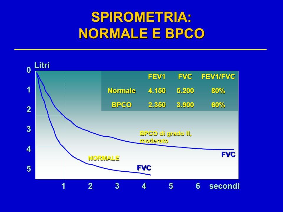 5 0 1 2 3 4 123456 FVC FVC BPCO di grado II, moderato NORMALE secondiLitri FEV1FVCFEV1/FVCNormale4.1505.20080% BPCO2.3503.90060% SPIROMETRIA: NORMALE