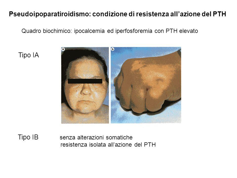 Pseudoipoparatiroidismo: condizione di resistenza allazione del PTH Tipo IA coesistenza con ipotiroidismo ed ipogonadismo Tipo IB senza alterazioni so