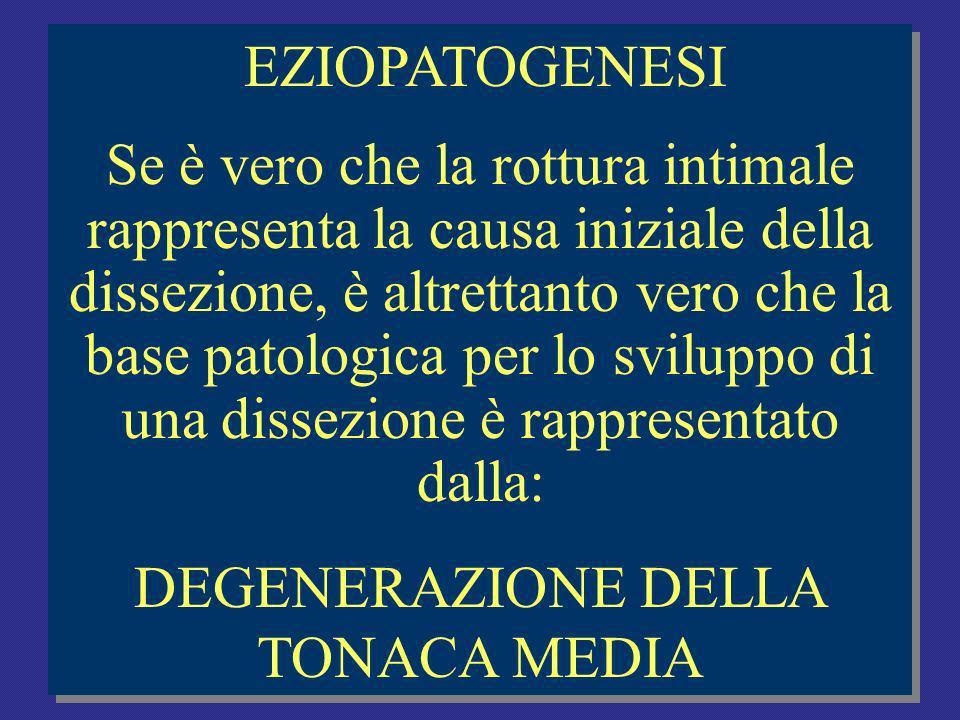 EZIOPATOGENESI Se è vero che la rottura intimale rappresenta la causa iniziale della dissezione, è altrettanto vero che la base patologica per lo sviluppo di una dissezione è rappresentato dalla: DEGENERAZIONE DELLA TONACA MEDIA EZIOPATOGENESI Se è vero che la rottura intimale rappresenta la causa iniziale della dissezione, è altrettanto vero che la base patologica per lo sviluppo di una dissezione è rappresentato dalla: DEGENERAZIONE DELLA TONACA MEDIA
