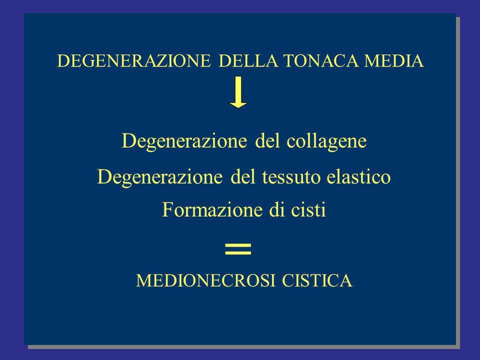 Degenerazione del collagene Degenerazione del tessuto elastico Formazione di cisti MEDIONECROSI CISTICA =