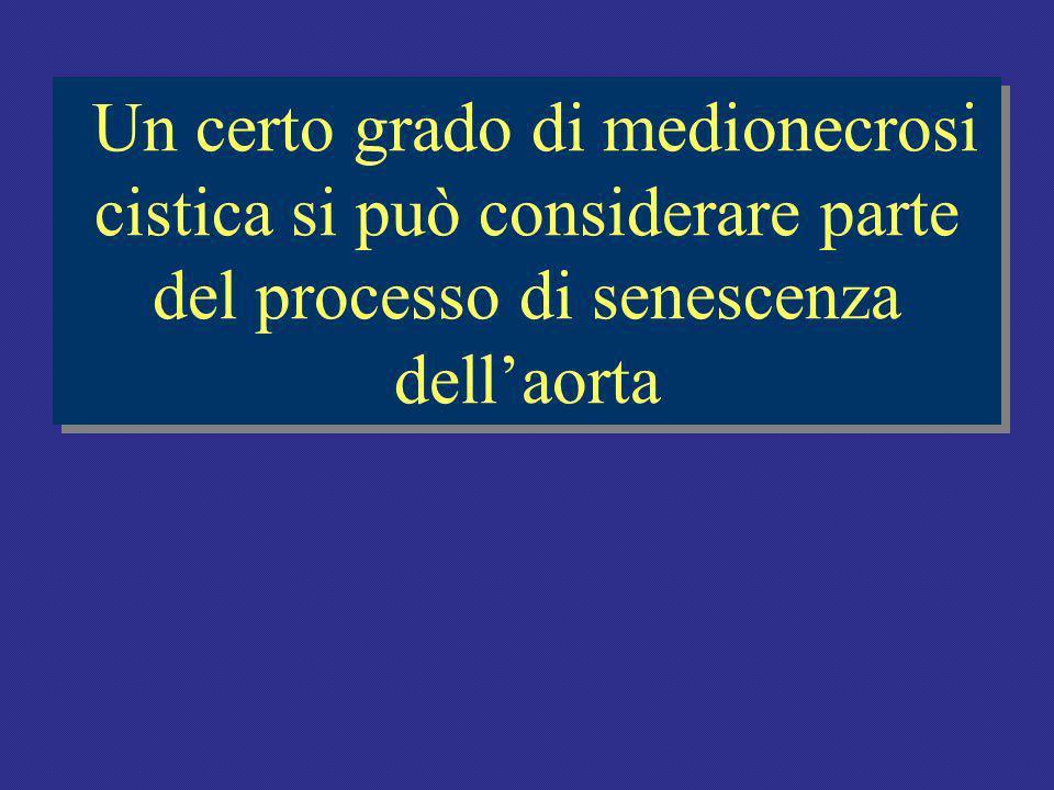 Un certo grado di medionecrosi cistica si può considerare parte del processo di senescenza dellaorta