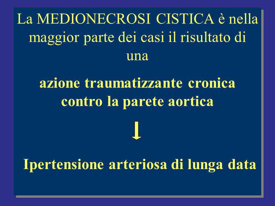 La MEDIONECROSI CISTICA è nella maggior parte dei casi il risultato di una azione traumatizzante cronica contro la parete aortica La MEDIONECROSI CISTICA è nella maggior parte dei casi il risultato di una azione traumatizzante cronica contro la parete aortica Ipertensione arteriosa di lunga data