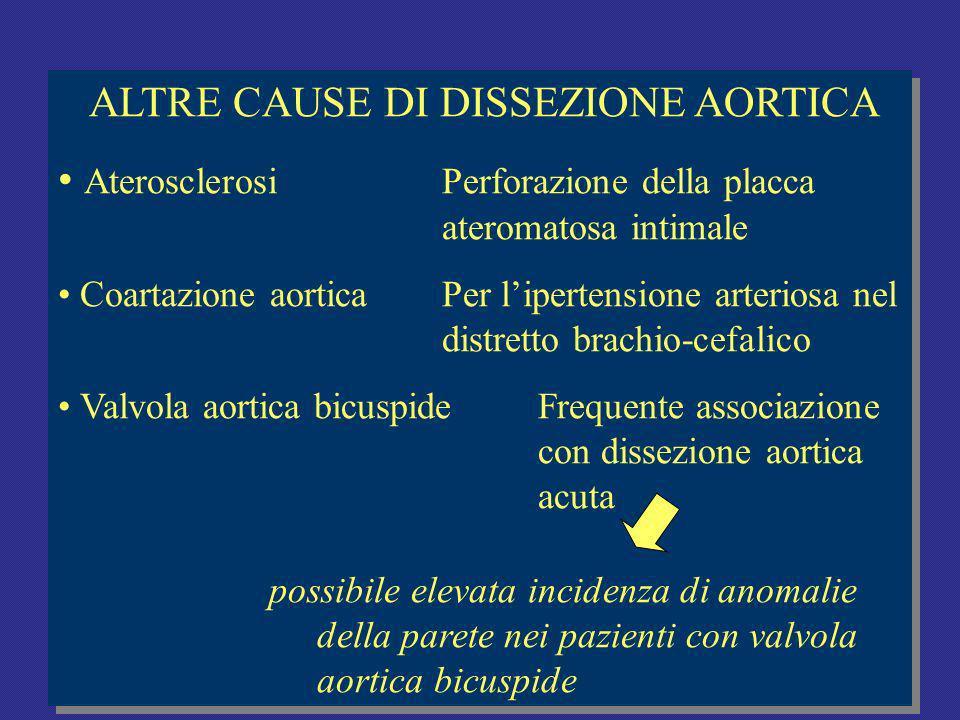 ALTRE CAUSE DI DISSEZIONE AORTICA AterosclerosiPerforazione della placca ateromatosa intimale Coartazione aorticaPer lipertensione arteriosa nel distretto brachio-cefalico Valvola aortica bicuspideFrequente associazione con dissezione aortica acuta possibile elevata incidenza di anomalie della parete nei pazienti con valvola aortica bicuspide ALTRE CAUSE DI DISSEZIONE AORTICA AterosclerosiPerforazione della placca ateromatosa intimale Coartazione aorticaPer lipertensione arteriosa nel distretto brachio-cefalico Valvola aortica bicuspideFrequente associazione con dissezione aortica acuta possibile elevata incidenza di anomalie della parete nei pazienti con valvola aortica bicuspide