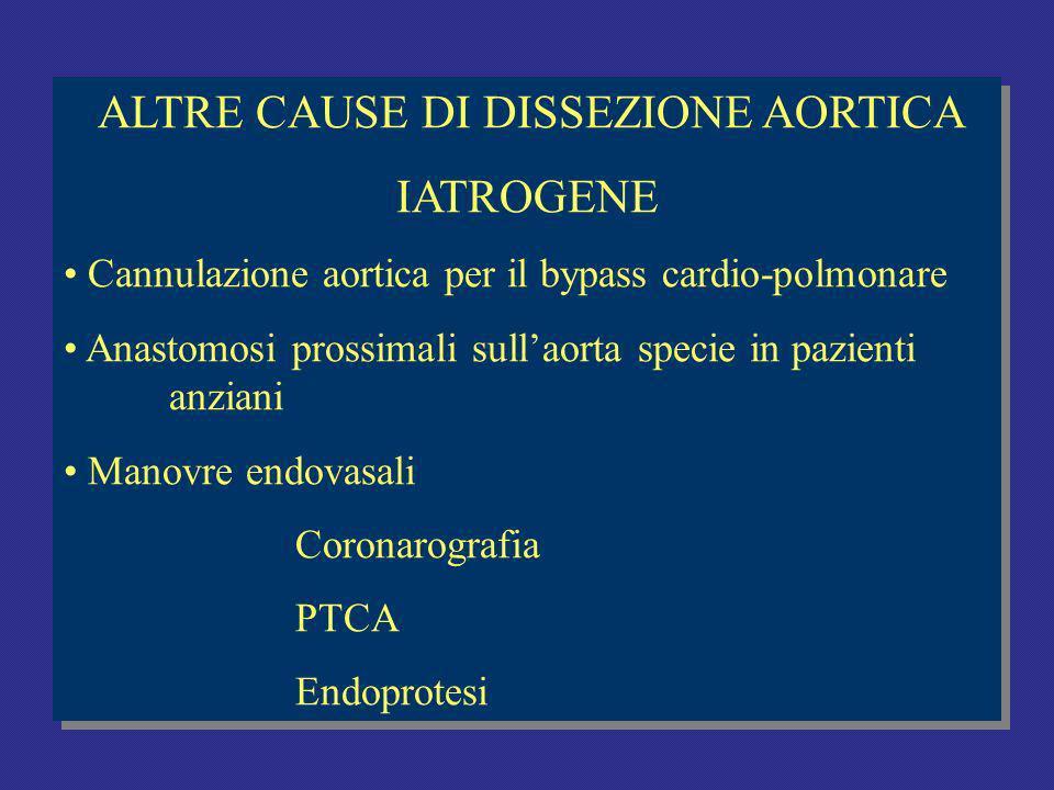 ALTRE CAUSE DI DISSEZIONE AORTICA IATROGENE Cannulazione aortica per il bypass cardio-polmonare Anastomosi prossimali sullaorta specie in pazienti anziani Manovre endovasali Coronarografia PTCA Endoprotesi ALTRE CAUSE DI DISSEZIONE AORTICA IATROGENE Cannulazione aortica per il bypass cardio-polmonare Anastomosi prossimali sullaorta specie in pazienti anziani Manovre endovasali Coronarografia PTCA Endoprotesi