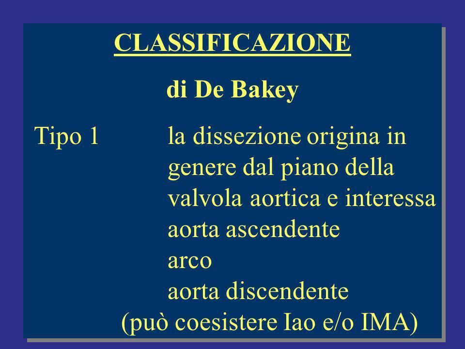 CLASSIFICAZIONE di De Bakey Tipo 1la dissezione origina in genere dal piano della valvola aortica e interessa aorta ascendente arco aorta discendente (può coesistere Iao e/o IMA) CLASSIFICAZIONE di De Bakey Tipo 1la dissezione origina in genere dal piano della valvola aortica e interessa aorta ascendente arco aorta discendente (può coesistere Iao e/o IMA)