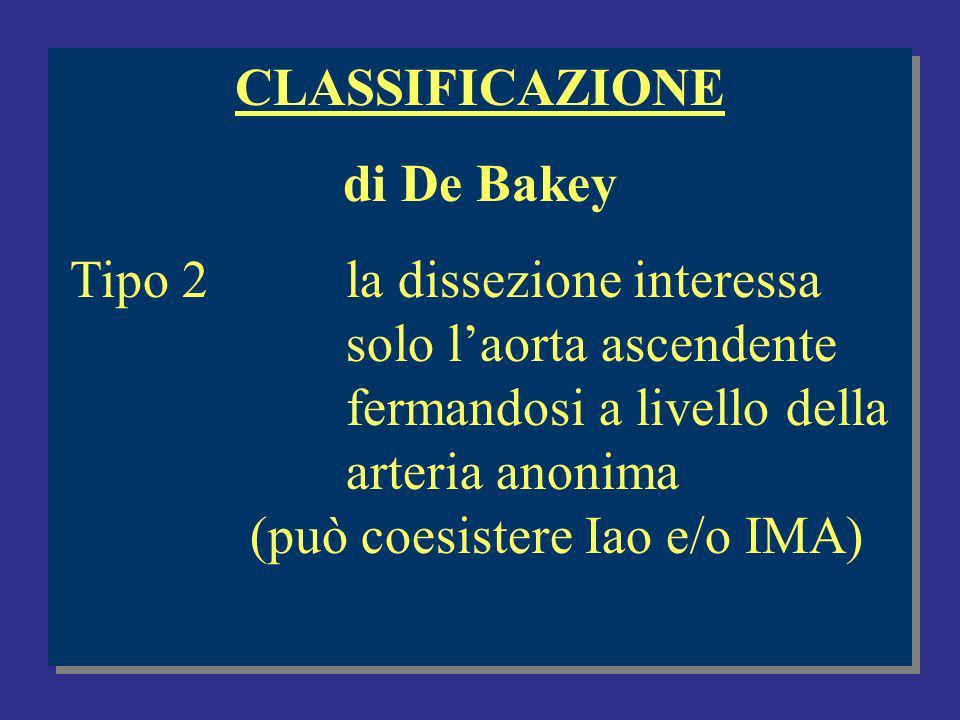 CLASSIFICAZIONE di De Bakey Tipo 2la dissezione interessa solo laorta ascendente fermandosi a livello della arteria anonima (può coesistere Iao e/o IMA) CLASSIFICAZIONE di De Bakey Tipo 2la dissezione interessa solo laorta ascendente fermandosi a livello della arteria anonima (può coesistere Iao e/o IMA)