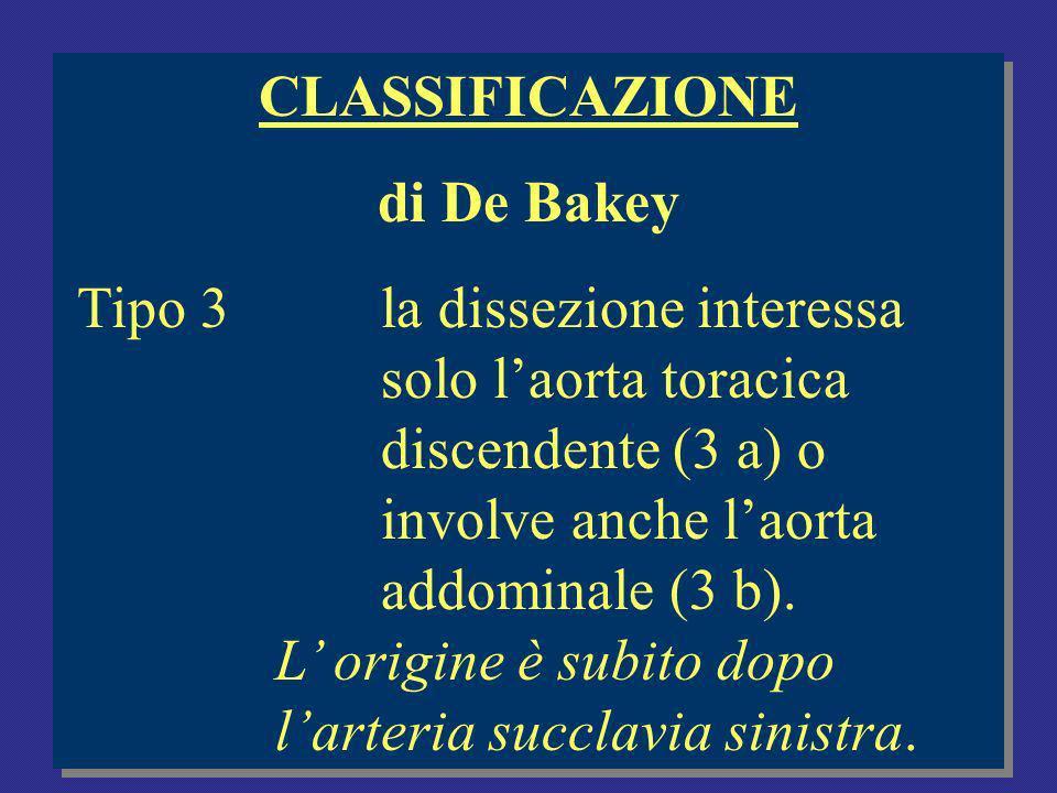 CLASSIFICAZIONE di De Bakey Tipo 3la dissezione interessa solo laorta toracica discendente (3 a) o involve anche laorta addominale (3 b).