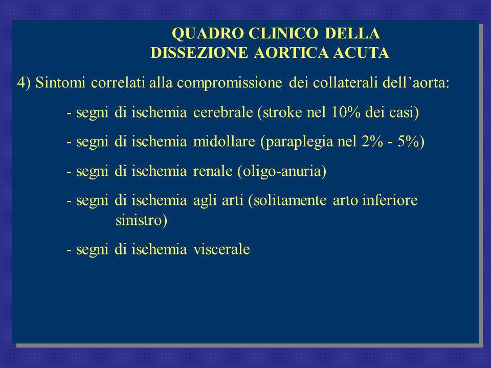 QUADRO CLINICO DELLA DISSEZIONE AORTICA ACUTA 4) Sintomi correlati alla compromissione dei collaterali dellaorta: - segni di ischemia cerebrale (stroke nel 10% dei casi) - segni di ischemia midollare (paraplegia nel 2% - 5%) - segni di ischemia renale (oligo-anuria) - segni di ischemia agli arti (solitamente arto inferiore sinistro) - segni di ischemia viscerale QUADRO CLINICO DELLA DISSEZIONE AORTICA ACUTA 4) Sintomi correlati alla compromissione dei collaterali dellaorta: - segni di ischemia cerebrale (stroke nel 10% dei casi) - segni di ischemia midollare (paraplegia nel 2% - 5%) - segni di ischemia renale (oligo-anuria) - segni di ischemia agli arti (solitamente arto inferiore sinistro) - segni di ischemia viscerale