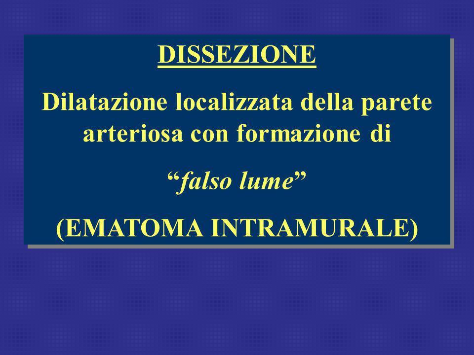DISSEZIONE Dilatazione localizzata della parete arteriosa con formazione di falso lume (EMATOMA INTRAMURALE) DISSEZIONE Dilatazione localizzata della parete arteriosa con formazione di falso lume (EMATOMA INTRAMURALE)