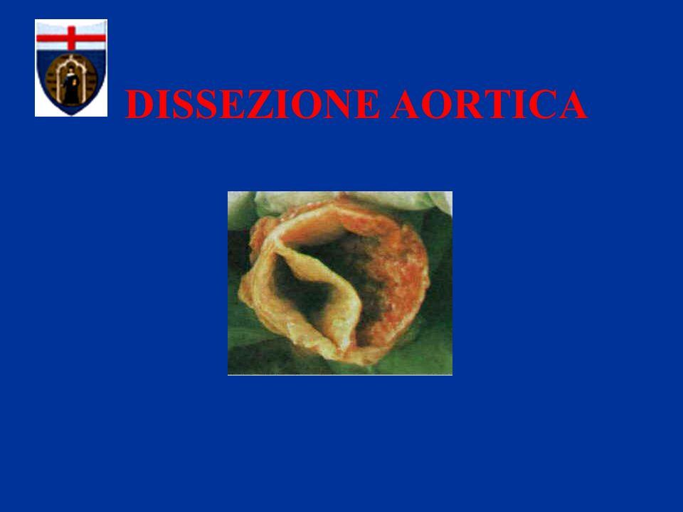 MALATTIE CONGENITE DEL TESSUTO CONNETTIVO 3) Sindrome della Dissezione Aortica Familiare Degenerazione cistica Deposito mucopolisaccaridi Ectasia anulo aortica Dissezione aortica
