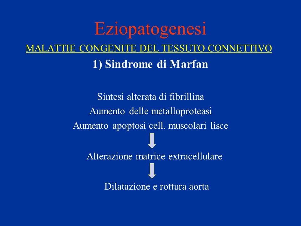 Eziopatogenesi MALATTIE CONGENITE DEL TESSUTO CONNETTIVO 1) Sindrome di Marfan Sintesi alterata di fibrillina Aumento delle metalloproteasi Aumento ap