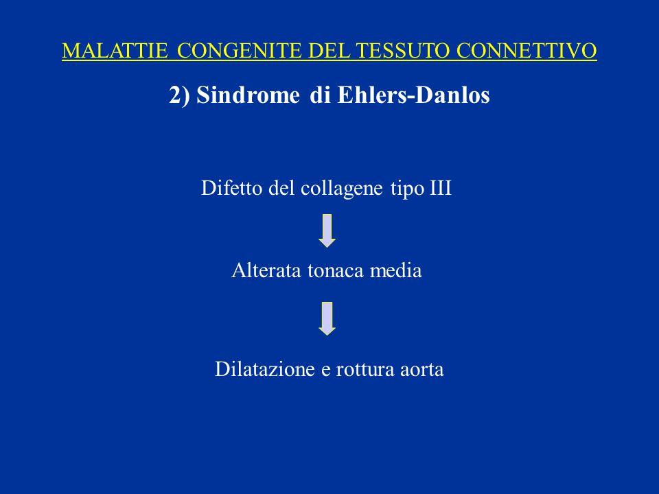 MALATTIE CONGENITE DEL TESSUTO CONNETTIVO 2) Sindrome di Ehlers-Danlos Difetto del collagene tipo III Alterata tonaca media Dilatazione e rottura aort