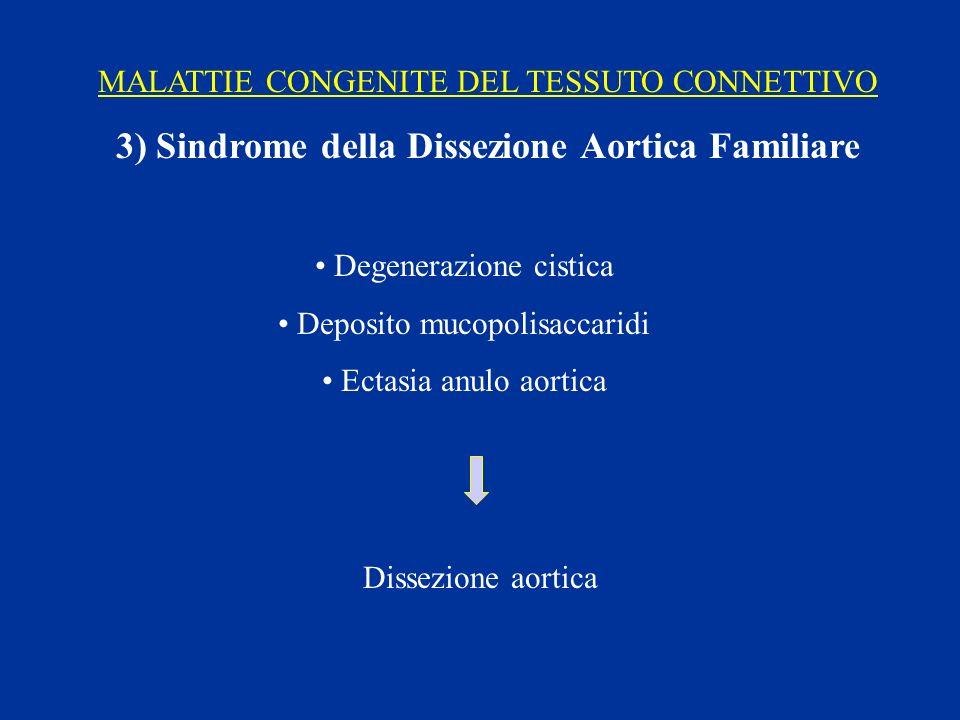 MALATTIE CONGENITE DEL TESSUTO CONNETTIVO 3) Sindrome della Dissezione Aortica Familiare Degenerazione cistica Deposito mucopolisaccaridi Ectasia anul