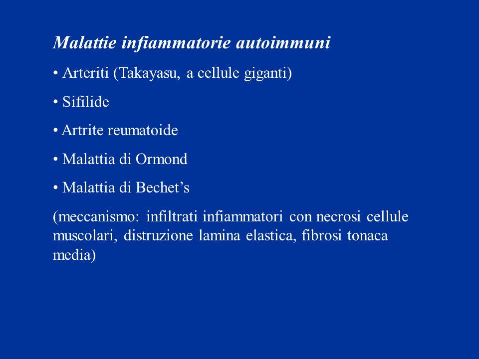 Malattie infiammatorie autoimmuni Arteriti (Takayasu, a cellule giganti) Sifilide Artrite reumatoide Malattia di Ormond Malattia di Bechets (meccanism