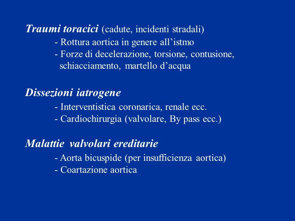 Traumi toracici (cadute, incidenti stradali) - Rottura aortica in genere allistmo - Forze di decelerazione, torsione, contusione, schiacciamento, mart