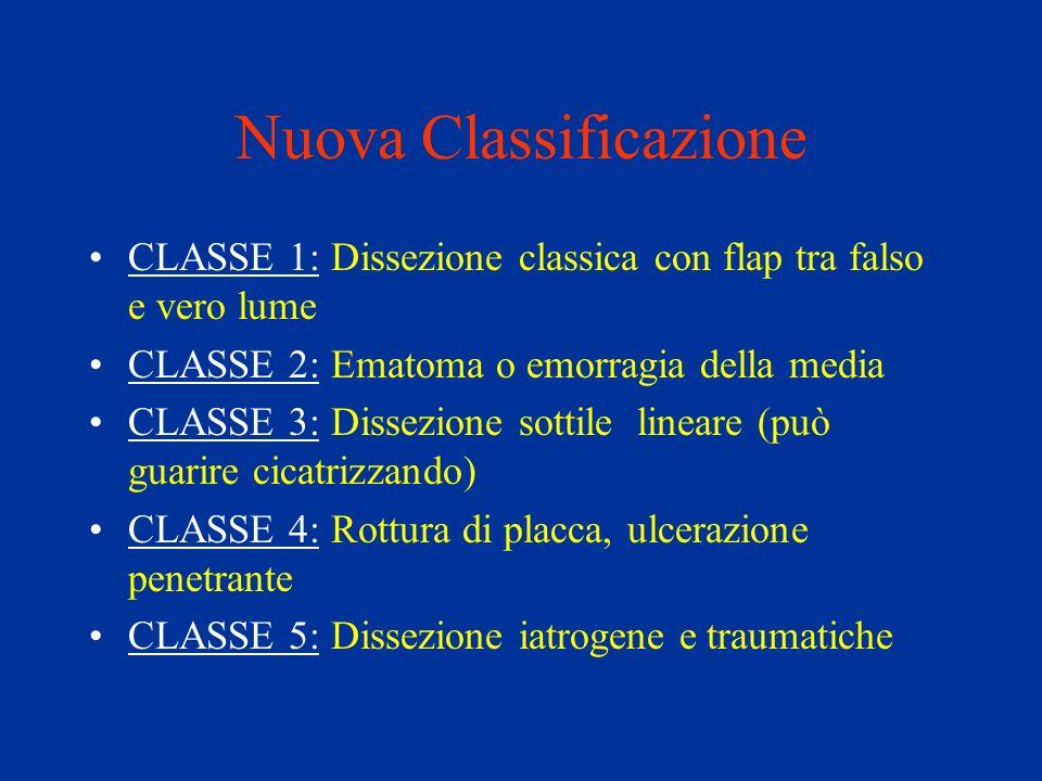 Nuova Classificazione CLASSE 1: Dissezione classica con flap tra falso e vero lume CLASSE 2: Ematoma o emorragia della media CLASSE 3: Dissezione sott