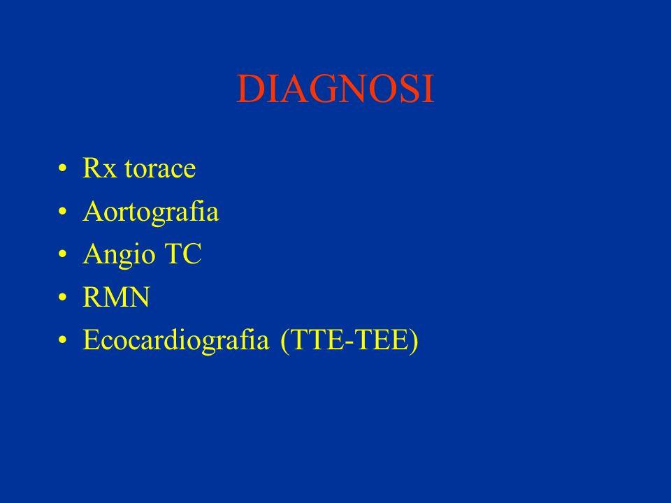 DIAGNOSI Rx torace Aortografia Angio TC RMN Ecocardiografia (TTE-TEE)