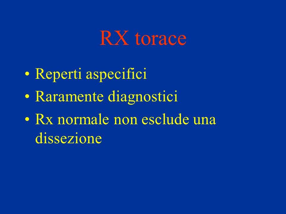 RX torace Reperti aspecifici Raramente diagnostici Rx normale non esclude una dissezione