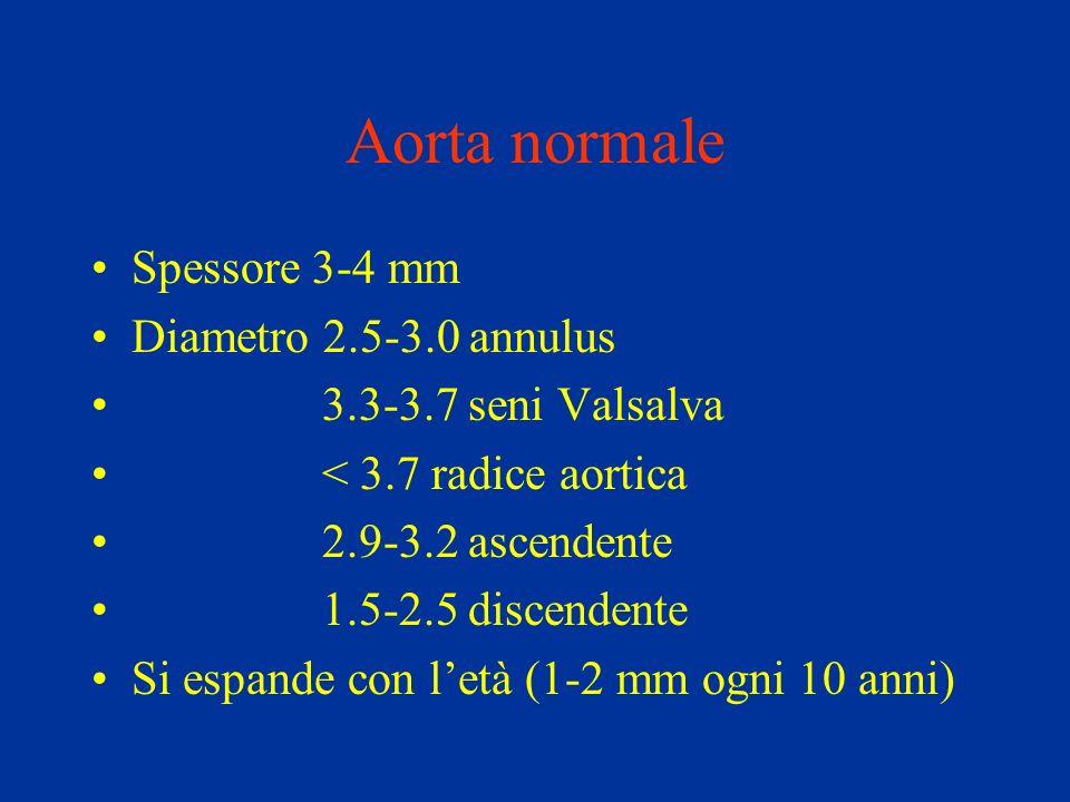 Trattamento medico OBIETTIVI PRINCIPALI: Eliminazione del dolore Riduzione della pressione sistolica (nitroprussiato, labetalolo) Riduzione della forza di eiezione ventricolare (beta bloccanti)