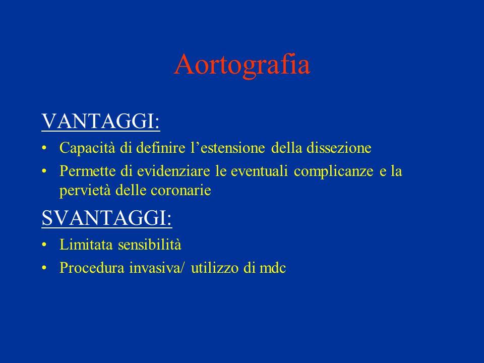 Aortografia VANTAGGI: Capacità di definire lestensione della dissezione Permette di evidenziare le eventuali complicanze e la pervietà delle coronarie