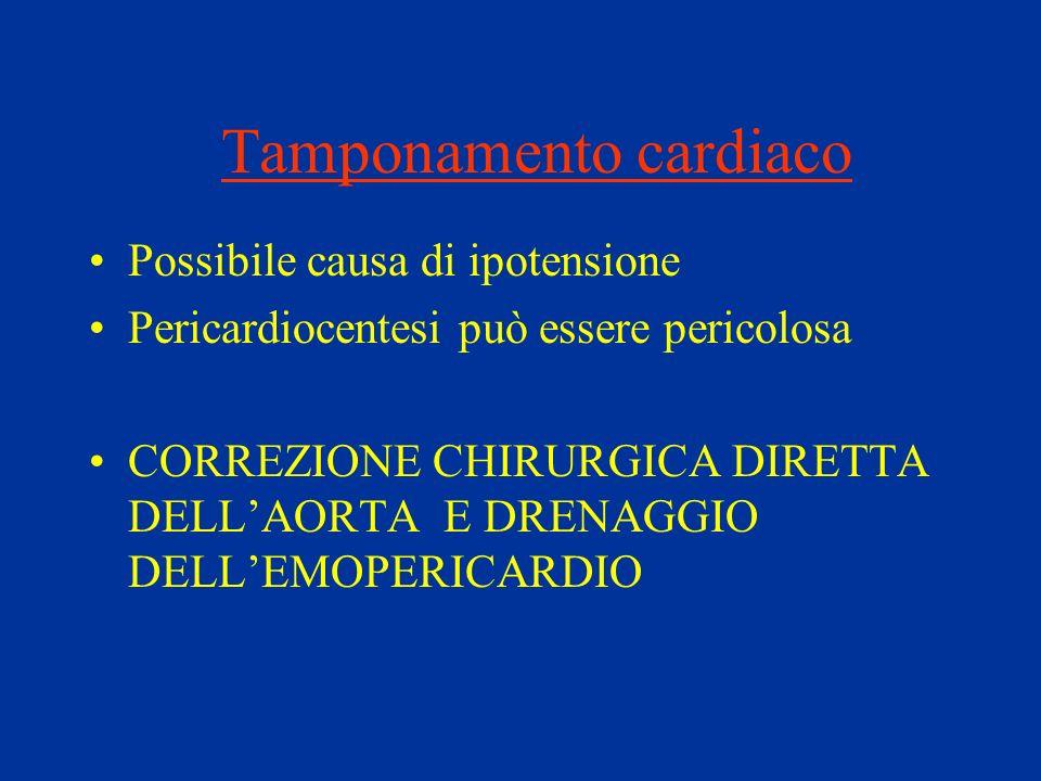 Tamponamento cardiaco Possibile causa di ipotensione Pericardiocentesi può essere pericolosa CORREZIONE CHIRURGICA DIRETTA DELLAORTA E DRENAGGIO DELLE