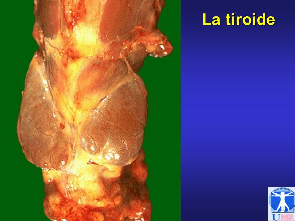 IPOTIROIDISMO Primario: difetto secrezione di FT3 e FT4 -Congenito permanente: agenesia/disgenesia tiroide -Congenito transitorio: farmaci, autoanticorpi materni -Acquisito: tiroidite autoimmune (Hashimoto), carenza di iodio (gozzo endemico), radio-iodio, tiroidectomia, farmaci (amiodarone, litio, iodio, anti-tiroidei) Secondario: difetto secrezione di TSH -Ipopituitarismo: chirurgico, traumatico, neoplastico, radiazioni Terziario: difetto secrezione di TRH -Malattie ipotalamiche: neoplasie