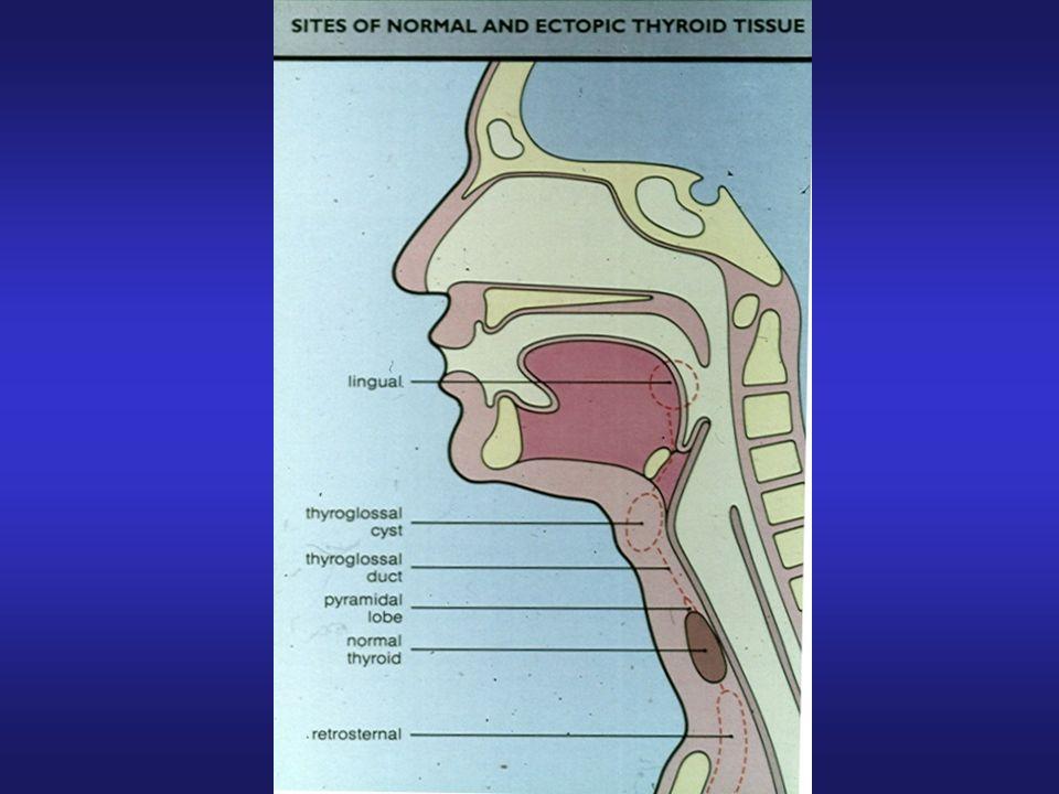 Esami per la diagnosi delle patologie tiroidea Citologia: Ago-aspirato tiroideo Diagnostica per immagini: Ecografia con eco-color-doppler Scintigrafia con iodio o tecnezio Iodio-captazione total body TC (collo e mediastino) Istologia: Agobiopsia (rara) Tiroidectomia