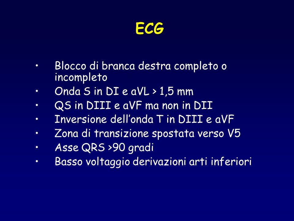 ECG Blocco di branca destra completo o incompleto Onda S in DI e aVL > 1,5 mm QS in DIII e aVF ma non in DII Inversione dellonda T in DIII e aVF Zona