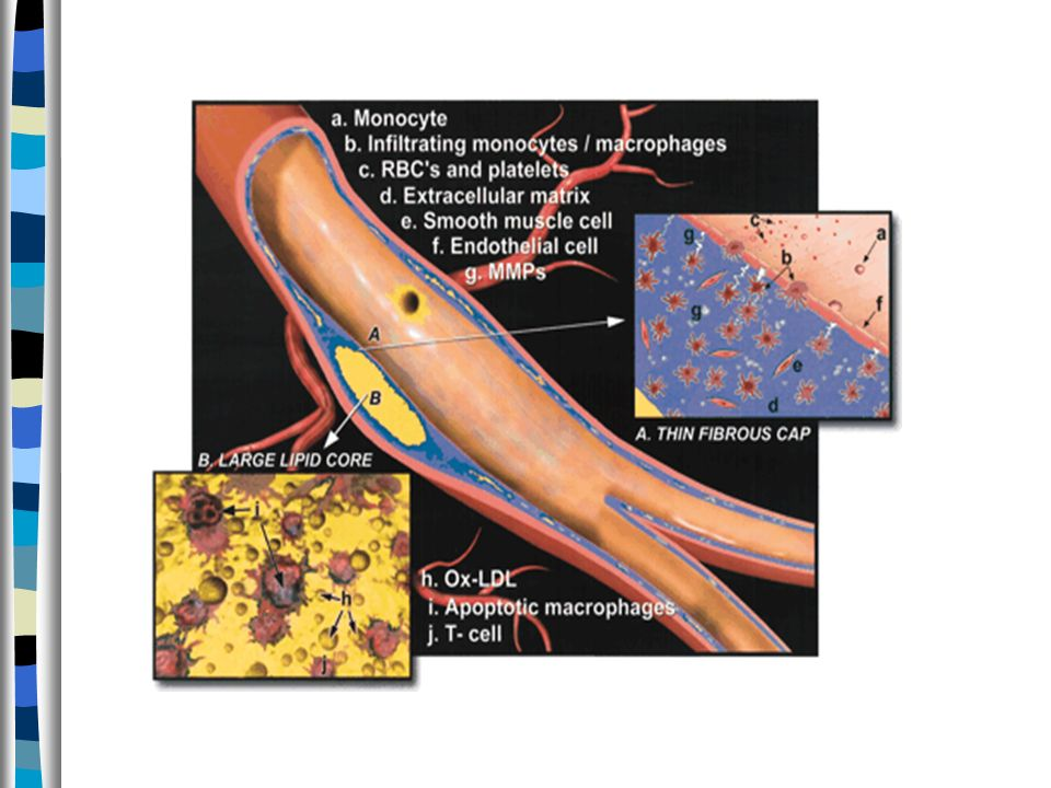 Pathobiological Determinants of Atherosclerosis In Youth (PDAY