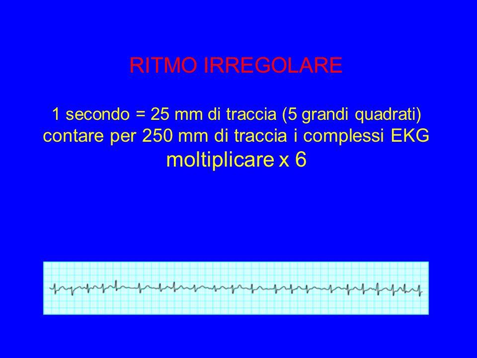 RITMO IRREGOLARE 1 secondo = 25 mm di traccia (5 grandi quadrati) contare per 250 mm di traccia i complessi EKG moltiplicare x 6